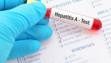 تست های هپاتیت ویروسي
