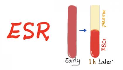 آزمایش ESR