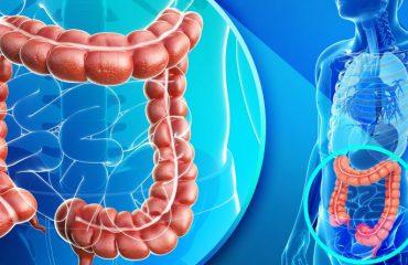 سرطان های کولورکتال