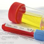 تست خون و ادرار آزمایشات طب کار