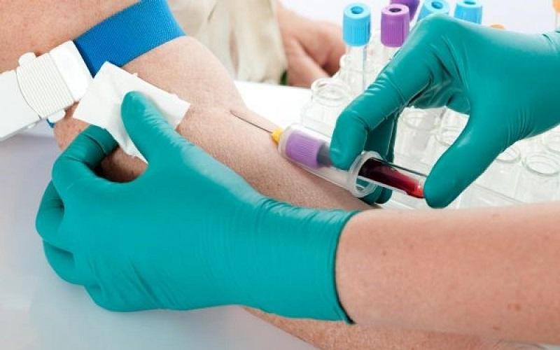 آزمایش عدم اعتیاد معاینات طب کار